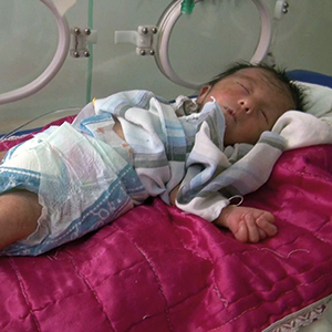 A girl in the neonatal unit of Fallujah's children's hospital, who was born with a congenital heart defect and malformations of the extremities. In 2010, a study found malformations in 14.7 % of all children born in Fallujah. Photo: © Donna Mulhearn